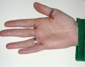 cut and stitched hand